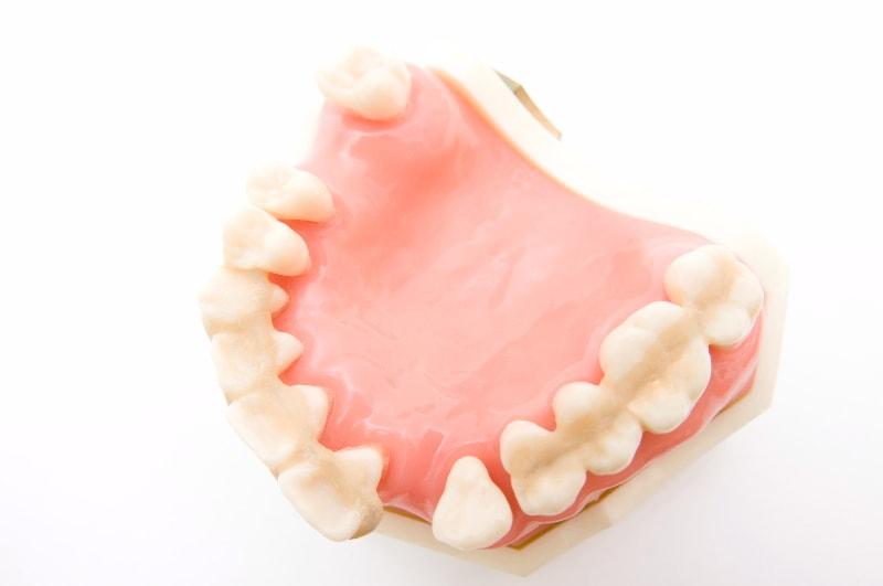 歯周病になるとどうなる?